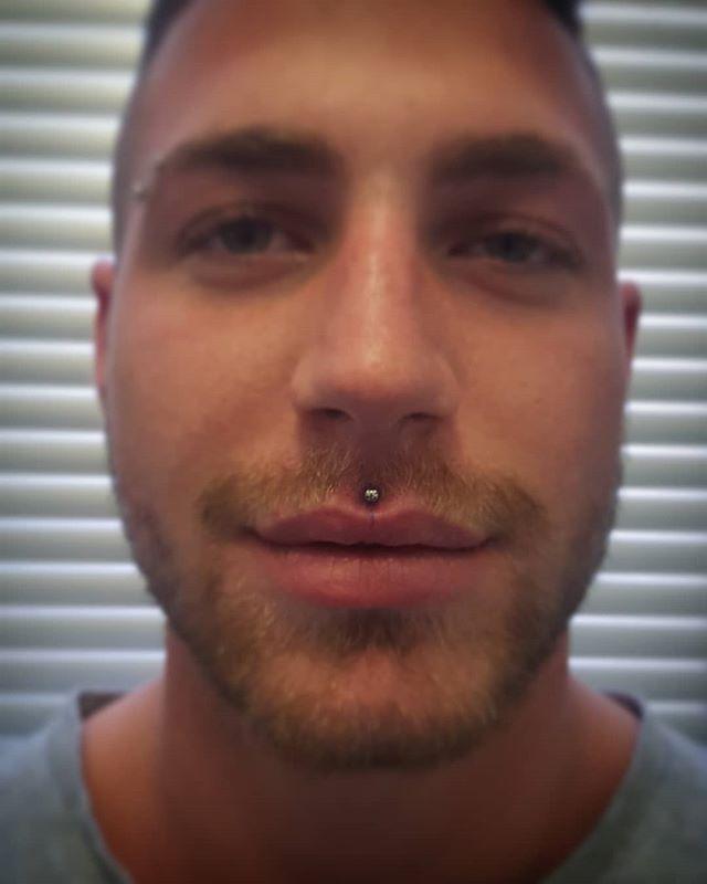 Piercing al labbro superiore, centrale (Medusa), appena eseguito da Zavo. -