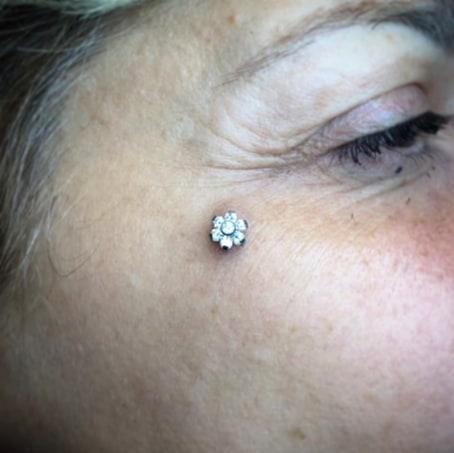 Cambio gioiello per questo dermal effettuato anni fa da Zavo e perfettamente guarito. Fiore in titanio a sei petali con brillantini swarovski prodotto da Tremun - Premium Body Jewelry. -